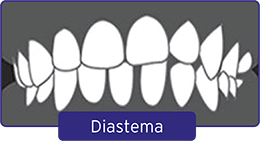 diestema-1 (1)